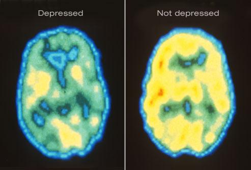 depression-mri